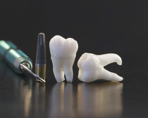 history dental implants origin