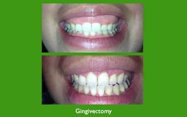 Gingivectomy before and after dental image