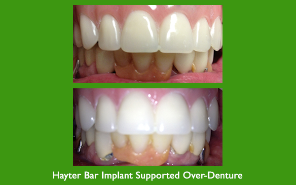 Hayter Bar Implant Supported Over - Denture before and after dental image