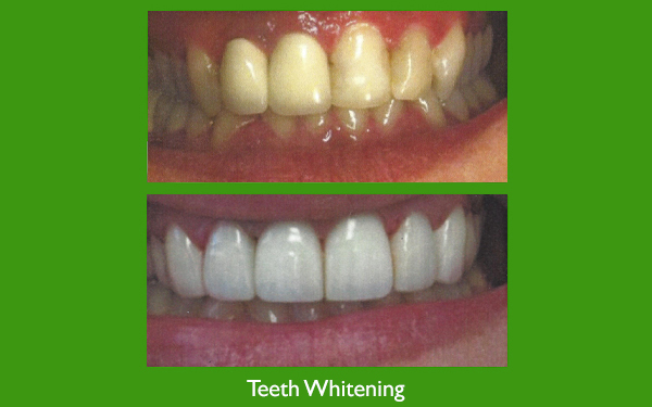 Teeth whitening before and after dental image