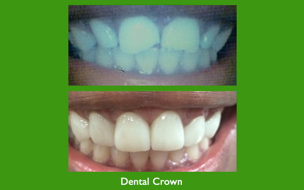 Dental Crown before and after image